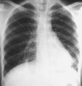 Sintomas tuberculose