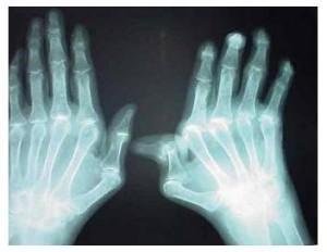 Artrite sintomas