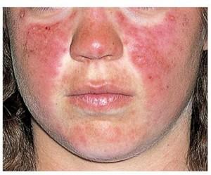 Lupo sintomas doenças e tratamento