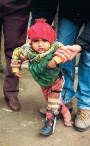 Poliomelite sintomas